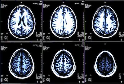 Neurofilament Light Prevalence Predicts Disease Progression in RRMS