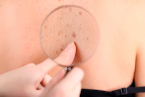 Study Finds Merkel Cell Carcinoma Incidence Has Increased Since 2000