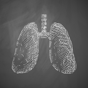 Anti–PD-1 Immunotherapy Helps With Coexisting Chronic Inflammation From COPD, NSCLC