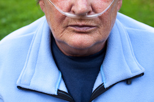 COPD Study Fails to Find Model That Can Predict Exacerbations