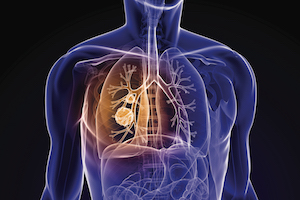 Risk-Targeted Lung Cancer Screening Shows Modest Benefits