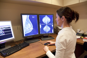 Radiologists Should Inform Patients When BAC Is Detected at Mammography