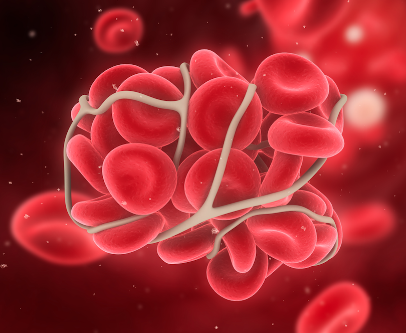 Landmark Study Says Most Patients Don't Benefit from tPA for Post-Thrombotic Syndrome